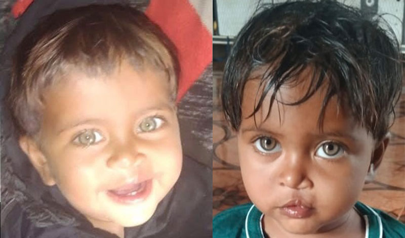 Aarohi after cleft surgery